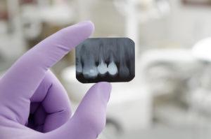 dental implant x-ray
