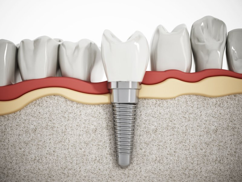 Illustration of dental implant and crown in jaw